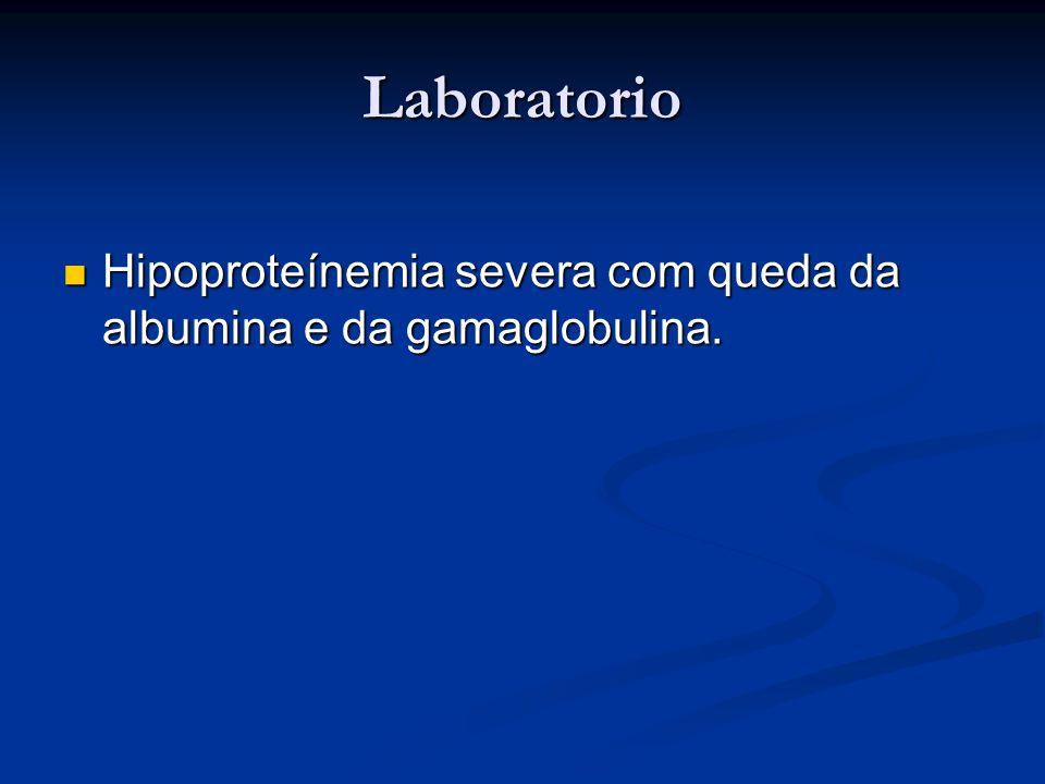 Laboratorio Hipoproteínemia severa com queda da albumina e da gamaglobulina.