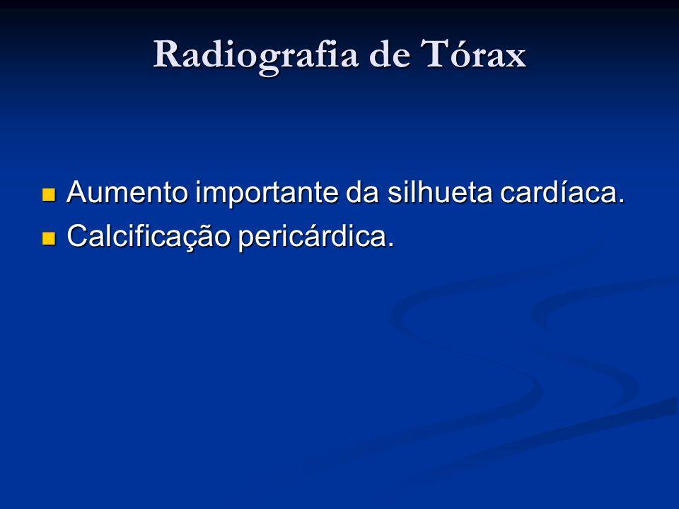 Radiografia de Tórax Aumento importante da silhueta cardíaca.