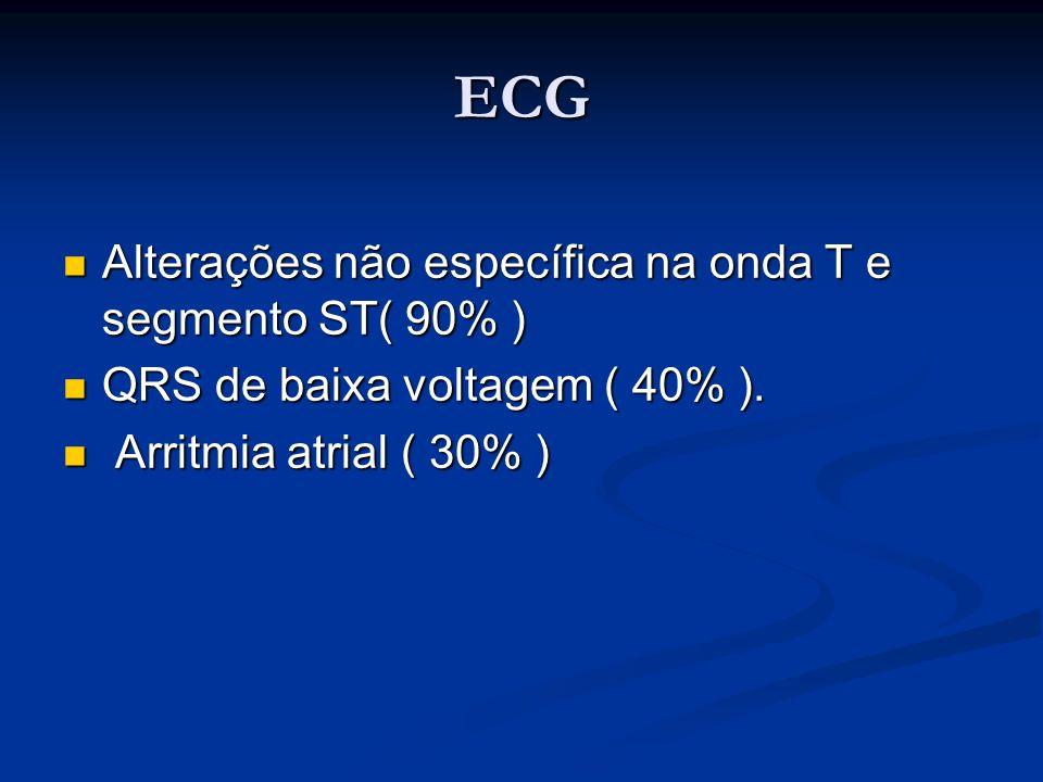 ECG Alterações não específica na onda T e segmento ST( 90% )