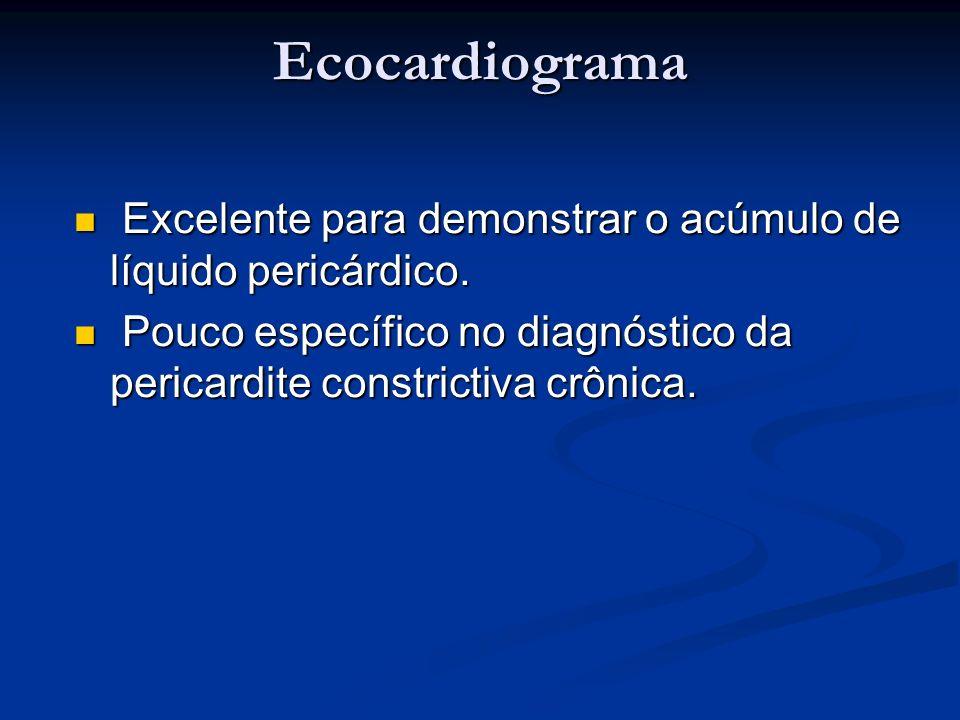 Ecocardiograma Excelente para demonstrar o acúmulo de líquido pericárdico.