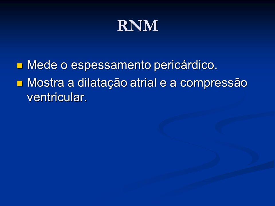 RNM Mede o espessamento pericárdico.