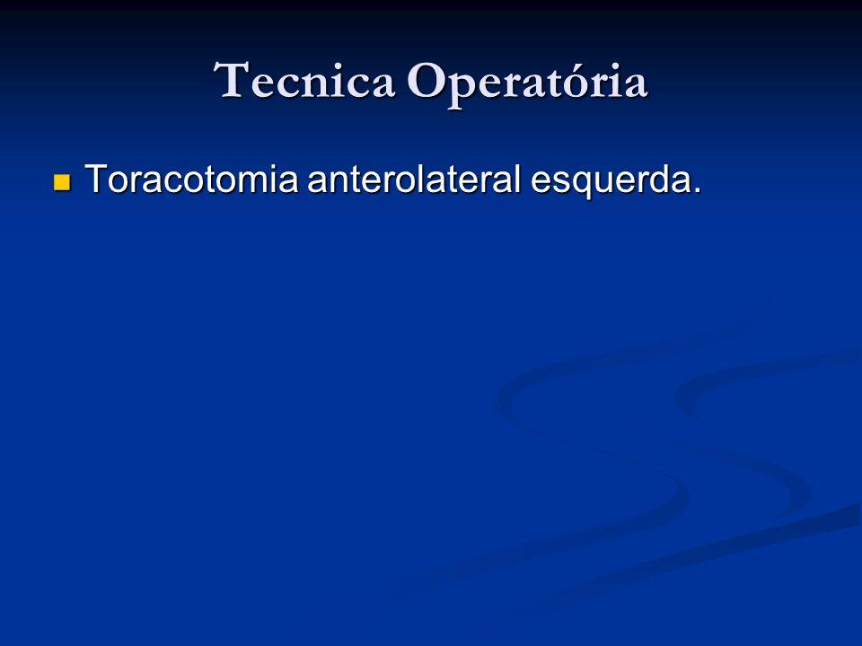 Tecnica Operatória Toracotomia anterolateral esquerda.