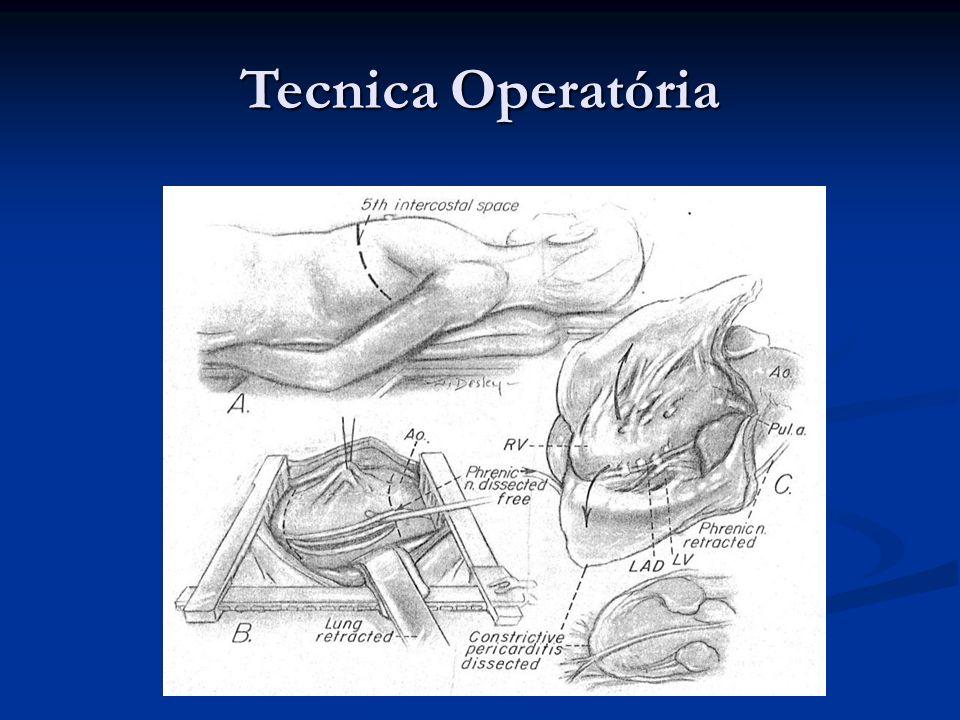 Tecnica Operatória