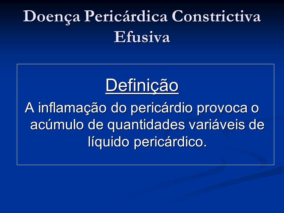Doença Pericárdica Constrictiva Efusiva