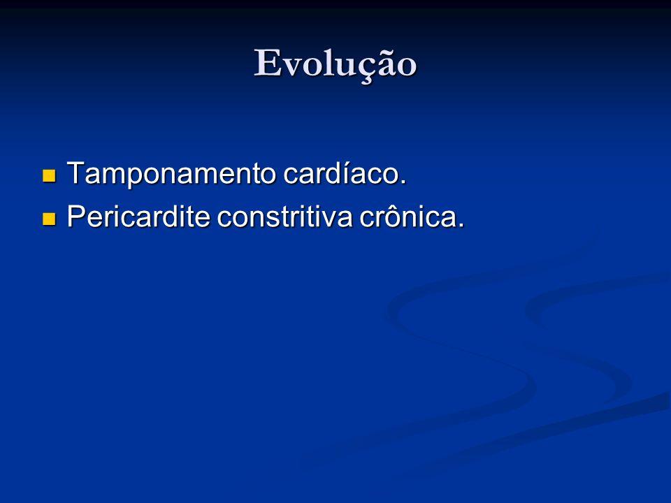 Evolução Tamponamento cardíaco. Pericardite constritiva crônica.