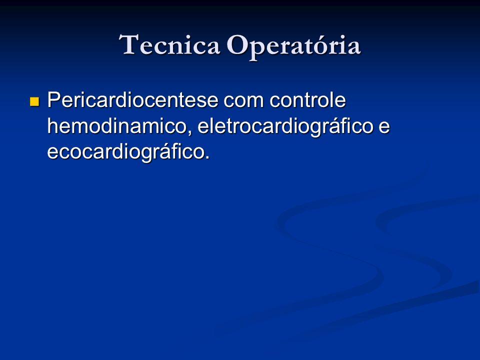 Tecnica Operatória Pericardiocentese com controle hemodinamico, eletrocardiográfico e ecocardiográfico.