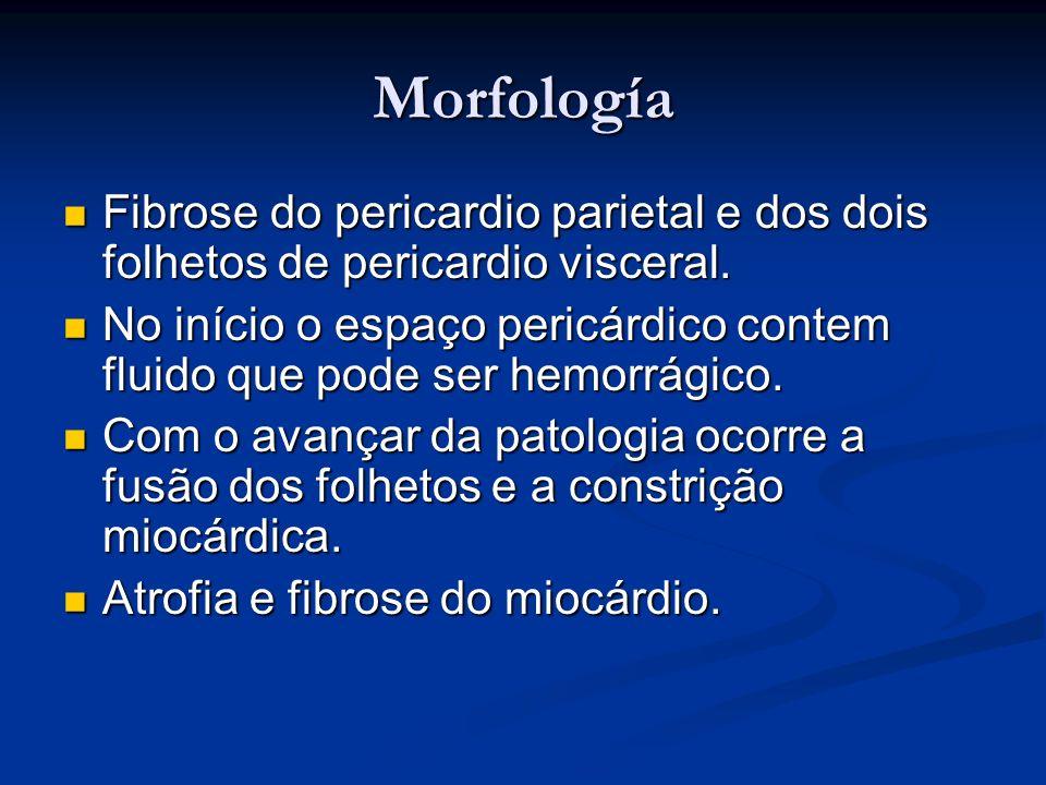 Morfología Fibrose do pericardio parietal e dos dois folhetos de pericardio visceral.