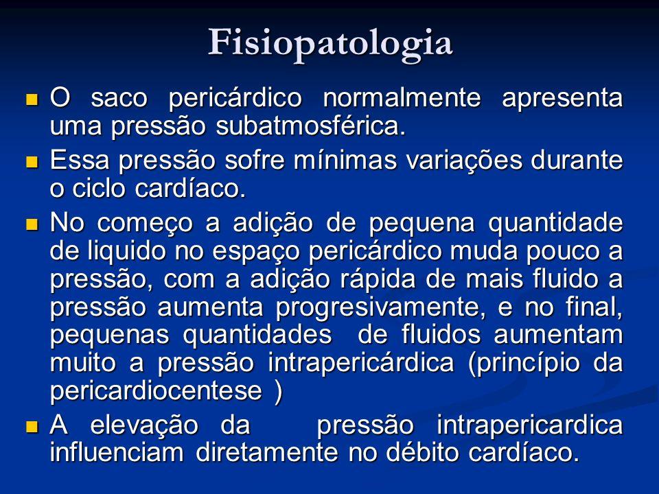 Fisiopatologia O saco pericárdico normalmente apresenta uma pressão subatmosférica. Essa pressão sofre mínimas variações durante o ciclo cardíaco.