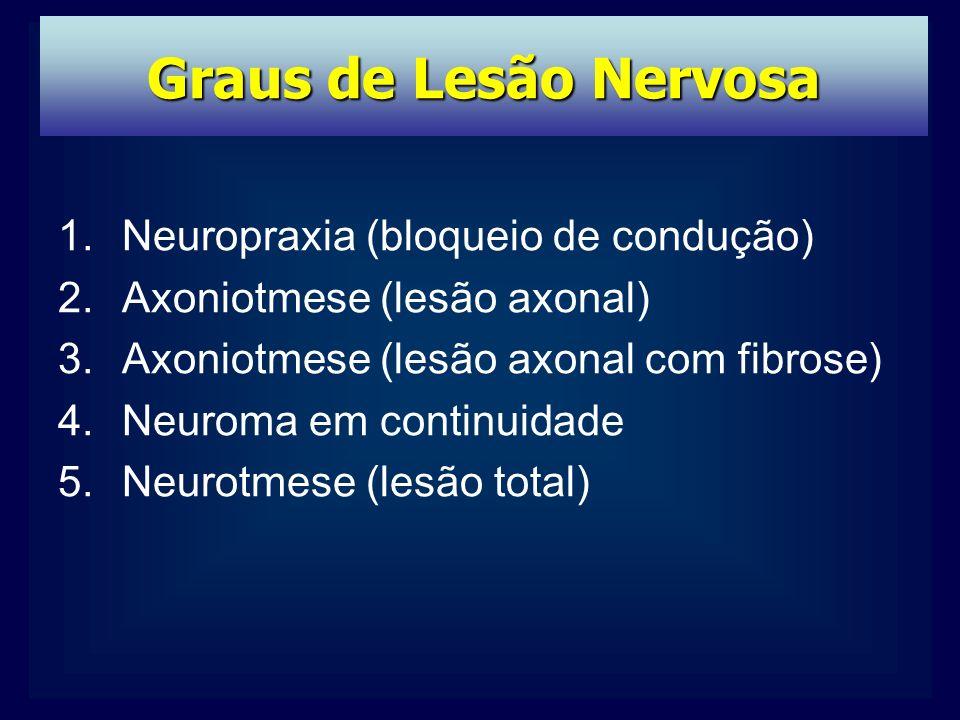 Graus de Lesão Nervosa Neuropraxia (bloqueio de condução)