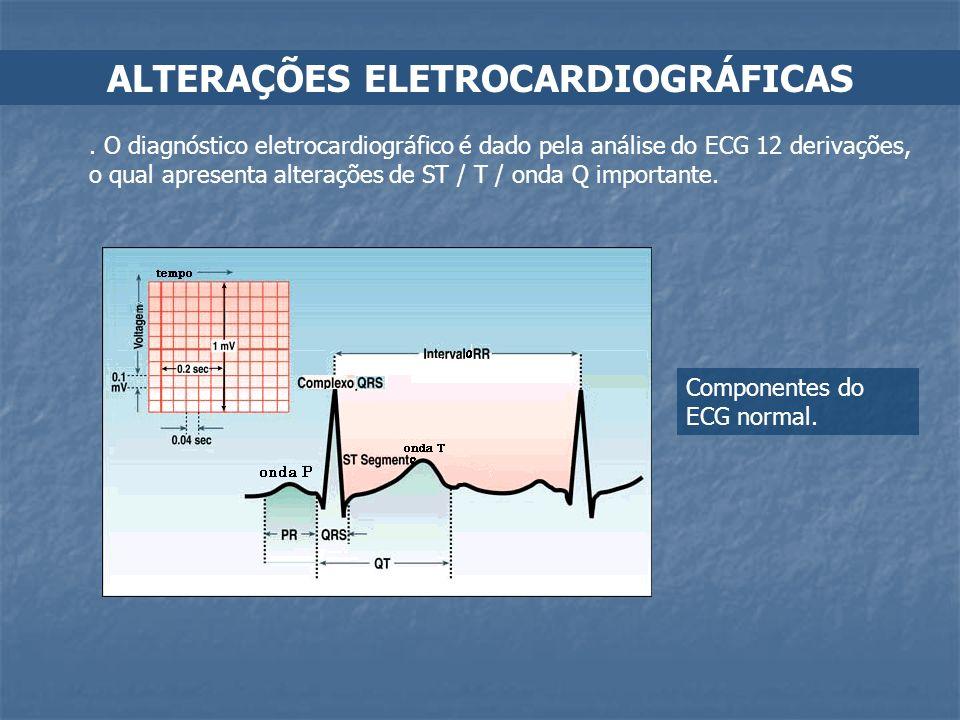 ALTERAÇÕES ELETROCARDIOGRÁFICAS