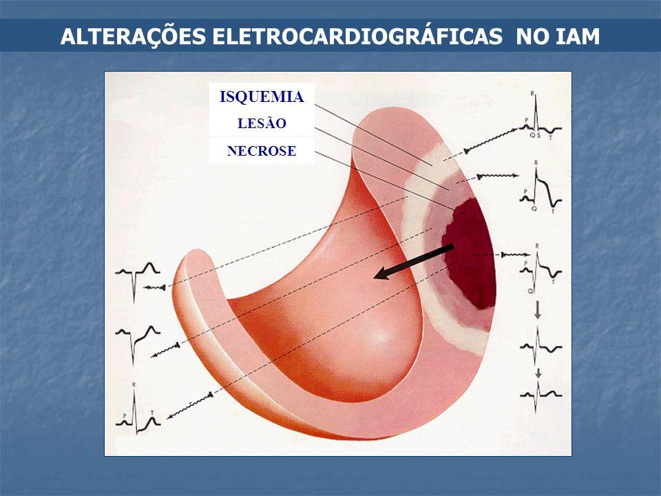 ALTERAÇÕES ELETROCARDIOGRÁFICAS NO IAM