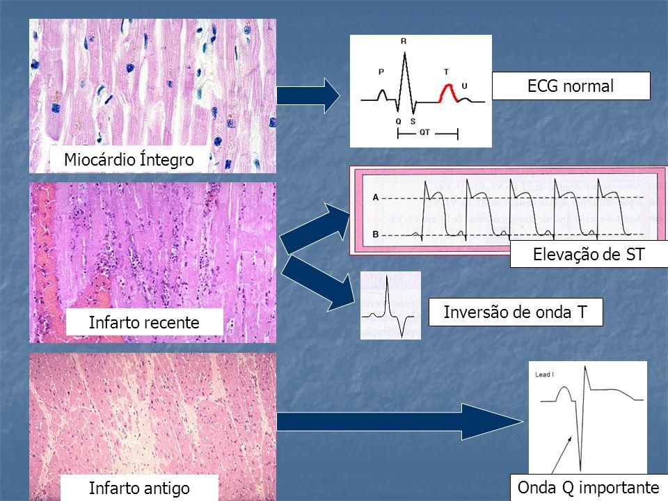 ECG normalMiocárdio Íntegro.Elevação de ST. Inversão de onda T.