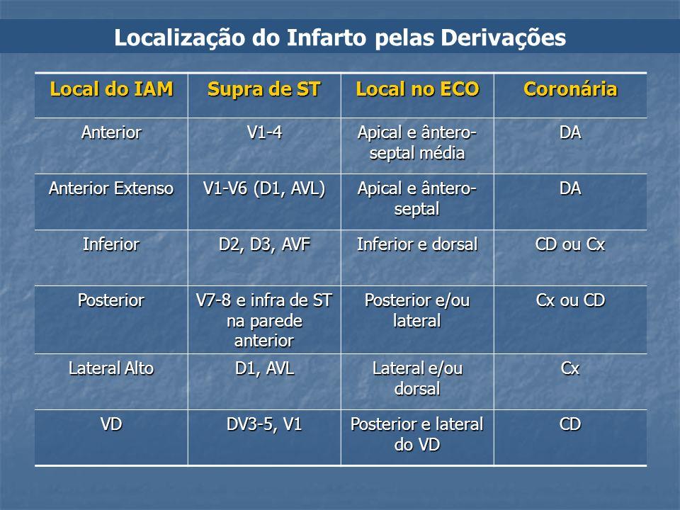 Localização do Infarto pelas Derivações