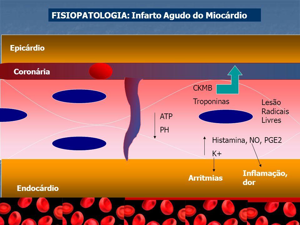 FISIOPATOLOGIA: Infarto Agudo do Miocárdio