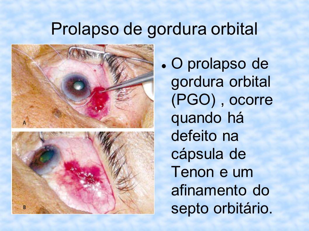 Prolapso de gordura orbital