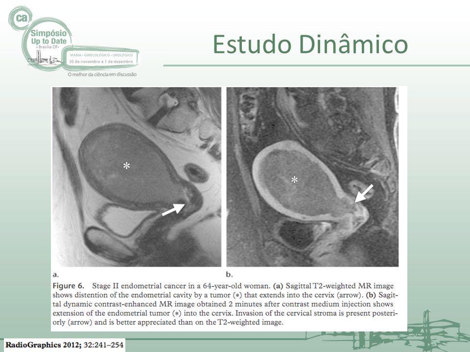 Estudo Dinâmico Iinvasão do estroma vascular. Aumenta muito a chance de invasão linfovascular.