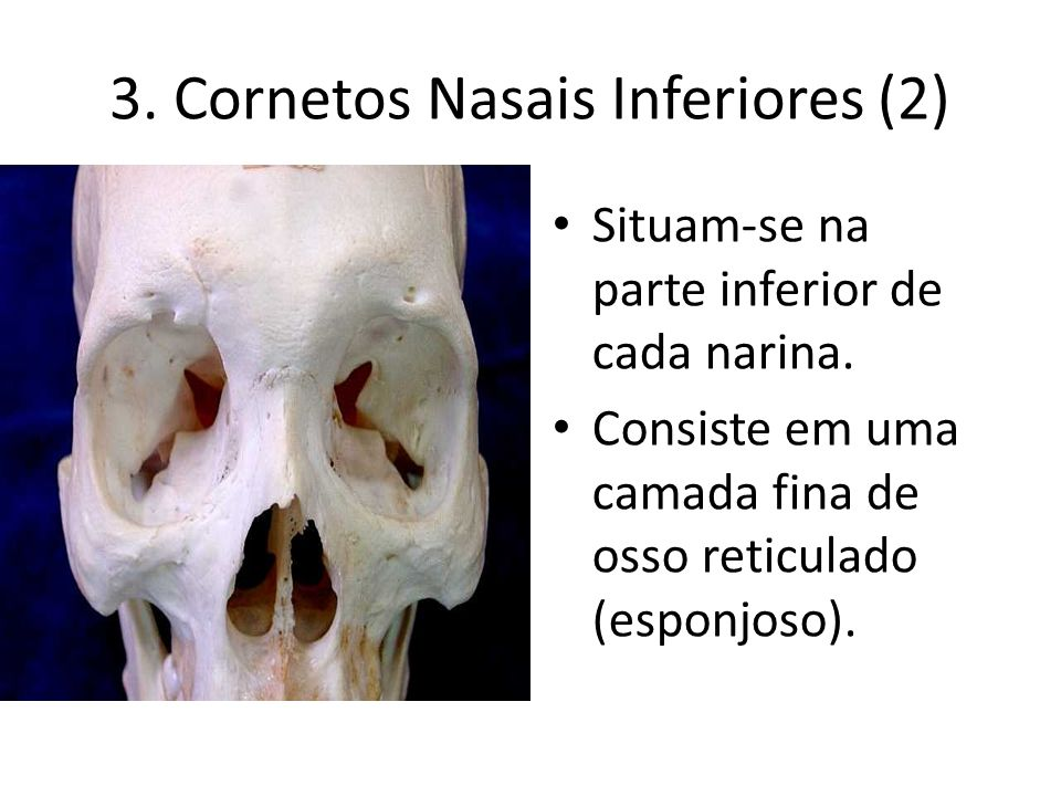 3. Cornetos Nasais Inferiores (2)‏