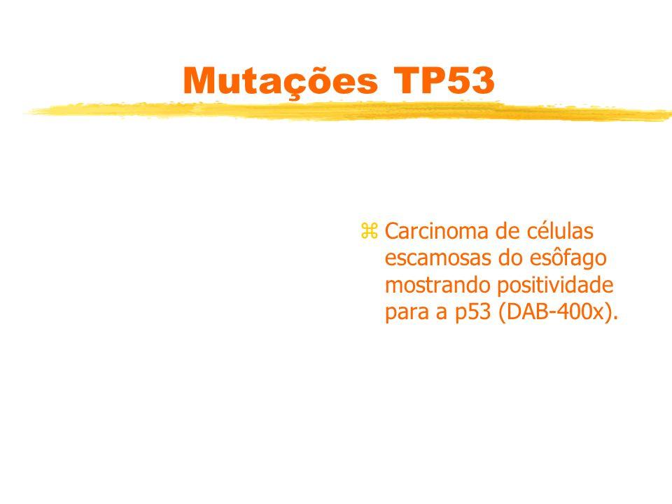 Mutações TP53 Carcinoma de células escamosas do esôfago mostrando positividade para a p53 (DAB-400x).