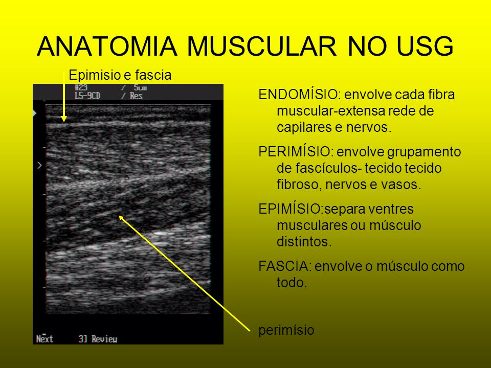 ANATOMIA MUSCULAR NO USG