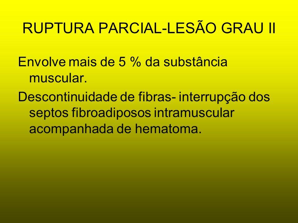 RUPTURA PARCIAL-LESÃO GRAU II