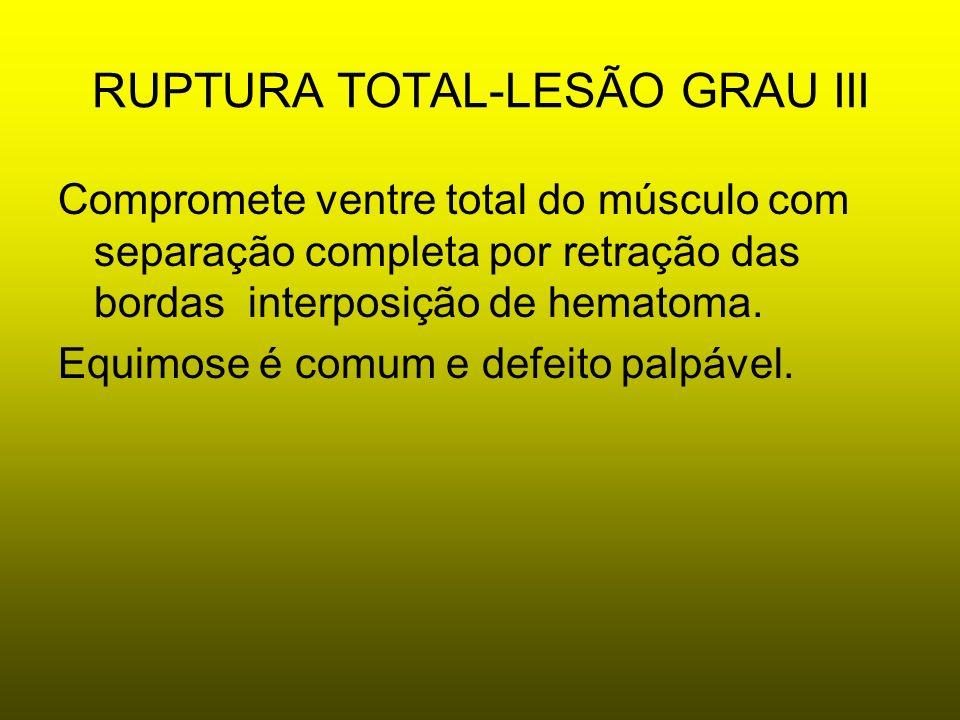 RUPTURA TOTAL-LESÃO GRAU III