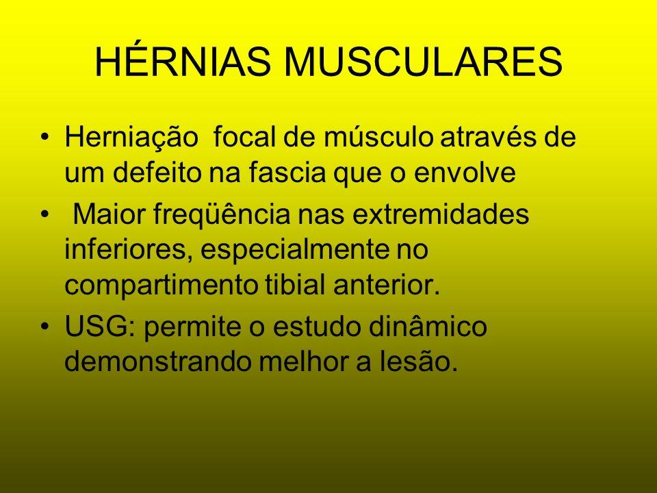 HÉRNIAS MUSCULARESHerniação focal de músculo através de um defeito na fascia que o envolve.
