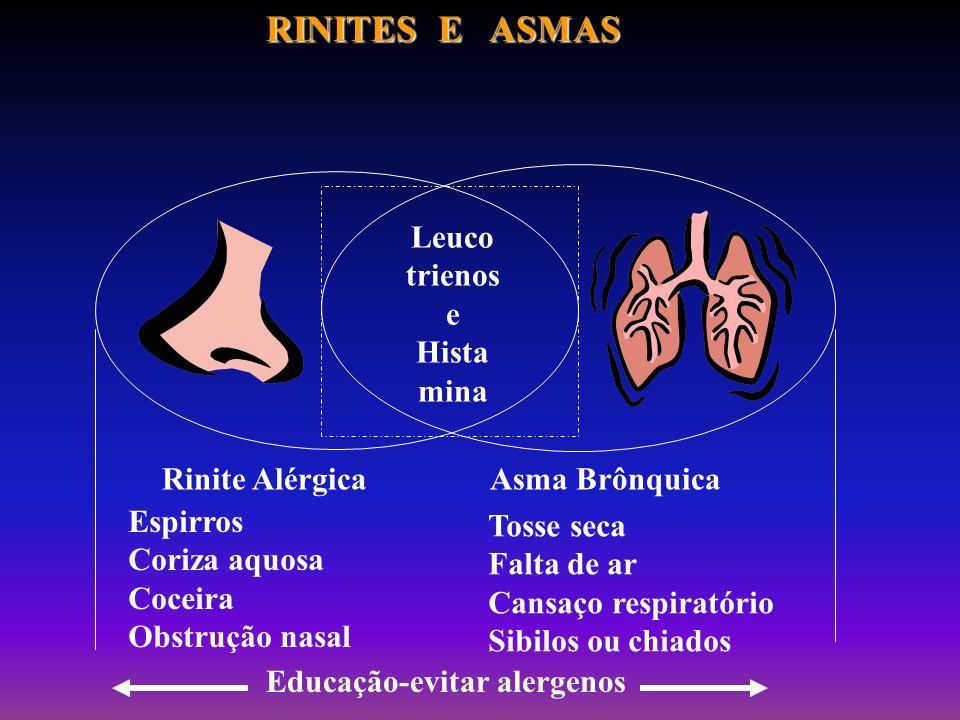 RINITES E ASMAS Leuco trienos e Hista mina Rinite Alérgica