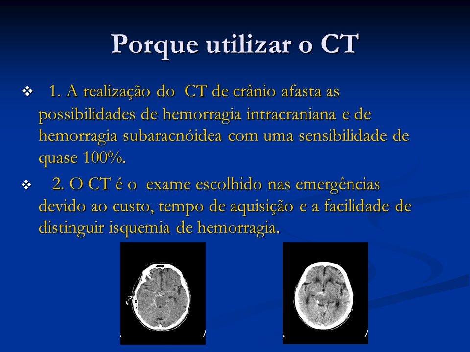 Porque utilizar o CT