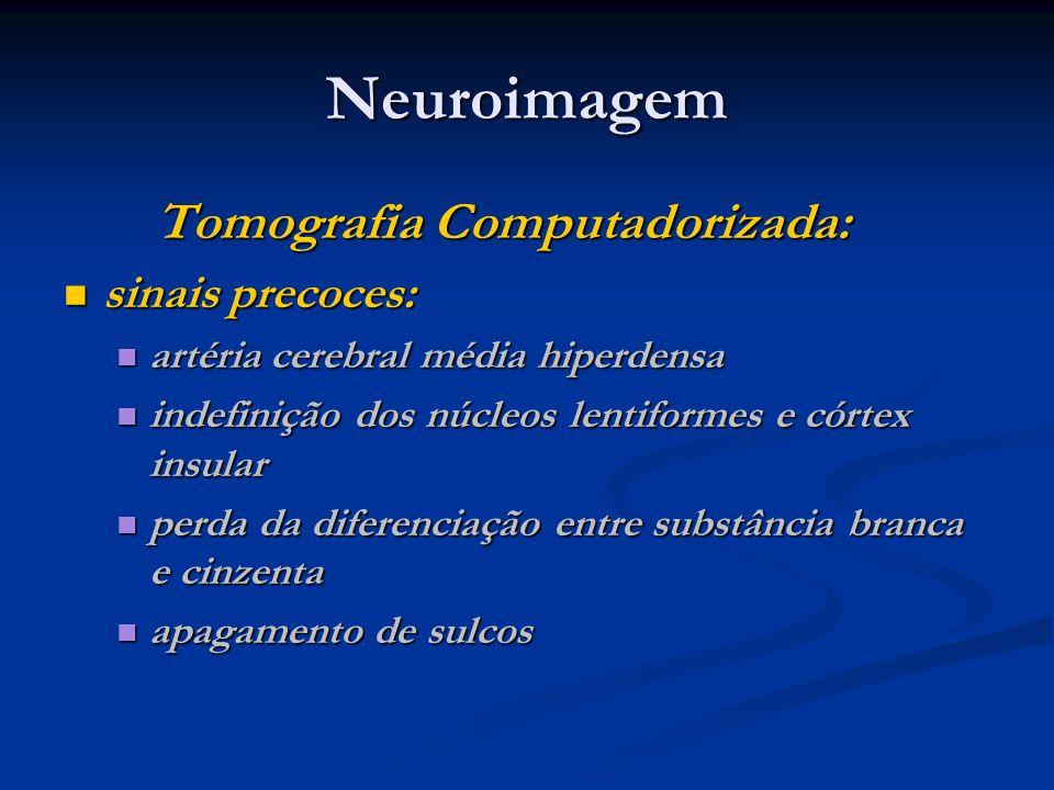 Neuroimagem Tomografia Computadorizada: sinais precoces: