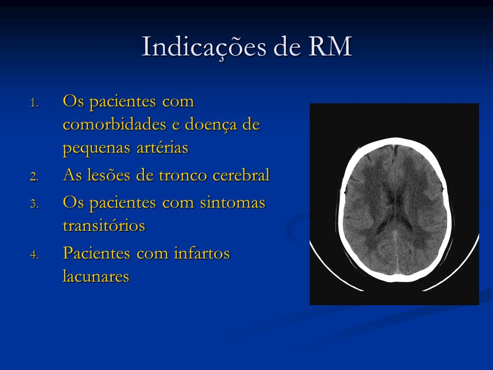 Indicações de RMOs pacientes com comorbidades e doença de pequenas artérias. As lesões de tronco cerebral.