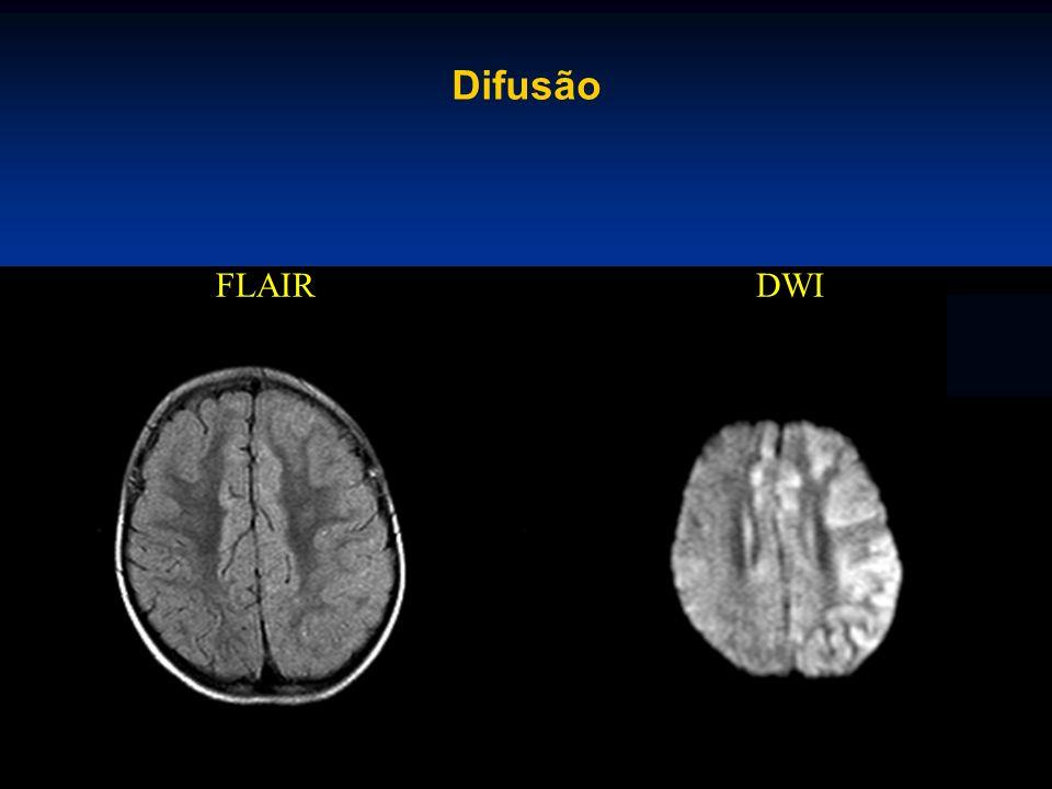 Difusão FLAIR DWI