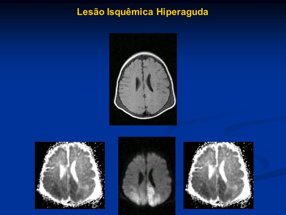 Lesão Isquêmica Hiperaguda