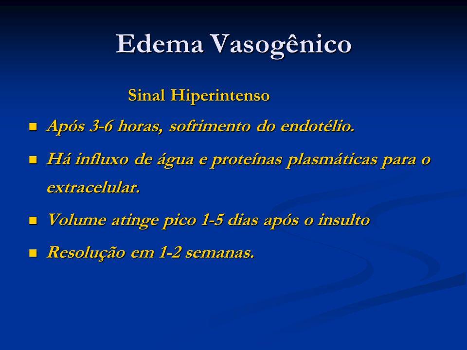 Edema Vasogênico Sinal Hiperintenso