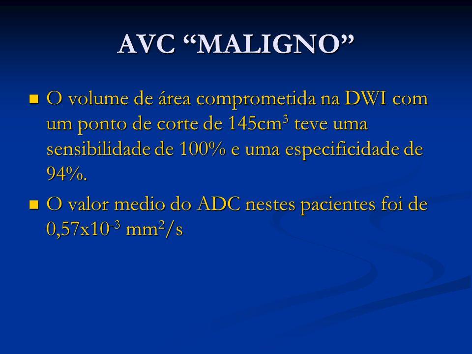 AVC MALIGNO O volume de área comprometida na DWI com um ponto de corte de 145cm3 teve uma sensibilidade de 100% e uma especificidade de 94%.