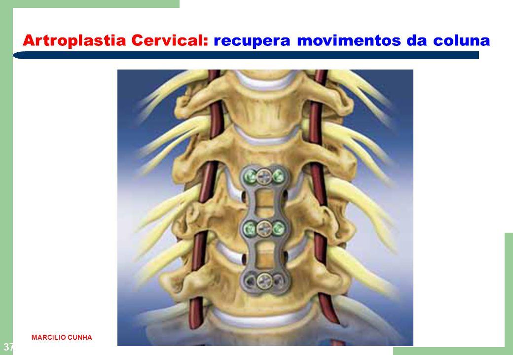 Artroplastia Cervical: recupera movimentos da coluna