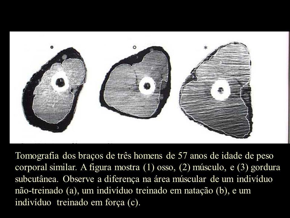 Tomografia dos braços de três homens de 57 anos de idade de peso corporal similar.