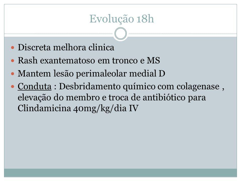 Evolução 18h Discreta melhora clinica Rash exantematoso em tronco e MS
