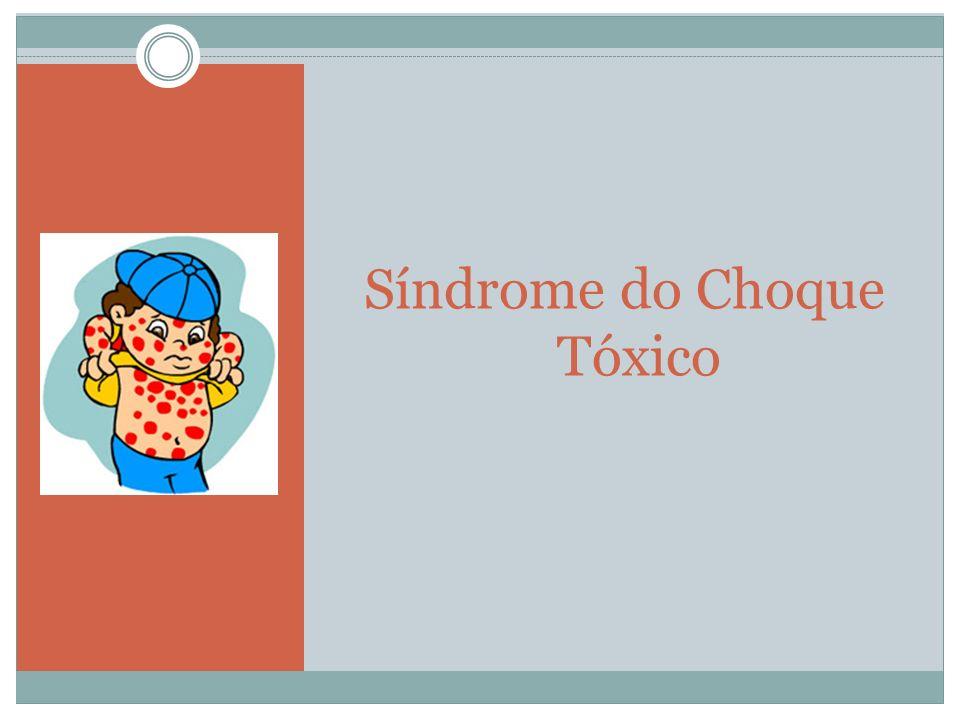 Síndrome do Choque Tóxico