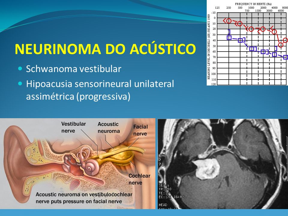 NEURINOMA DO ACÚSTICO Schwanoma vestibular