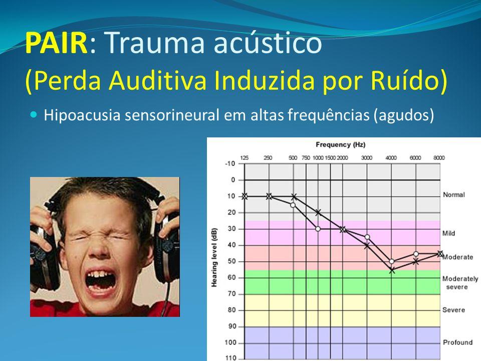 PAIR: Trauma acústico (Perda Auditiva Induzida por Ruído)