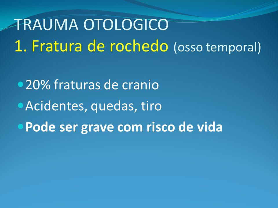 TRAUMA OTOLOGICO 1. Fratura de rochedo (osso temporal)