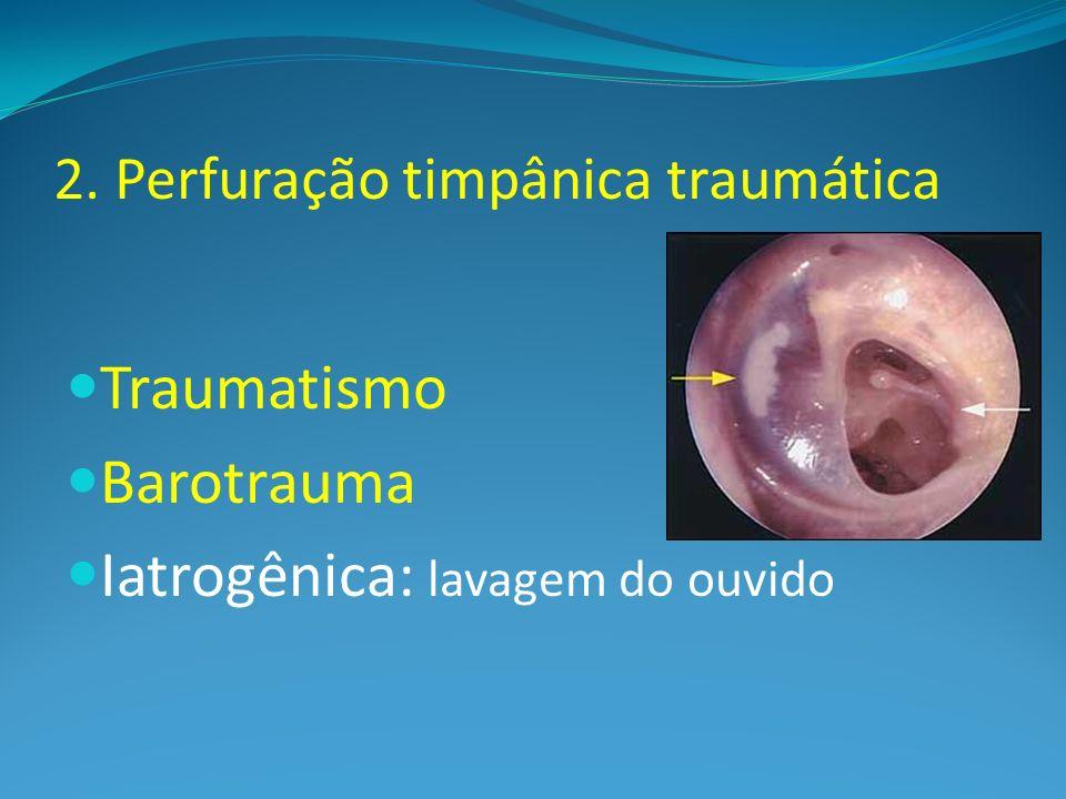 2. Perfuração timpânica traumática