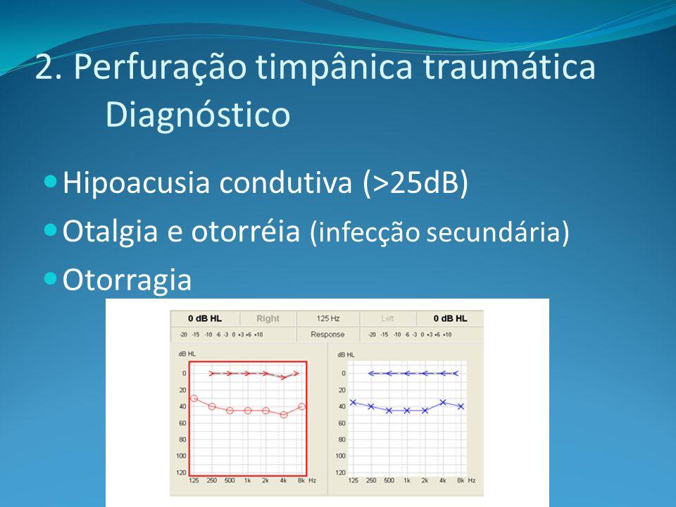 2. Perfuração timpânica traumática Diagnóstico