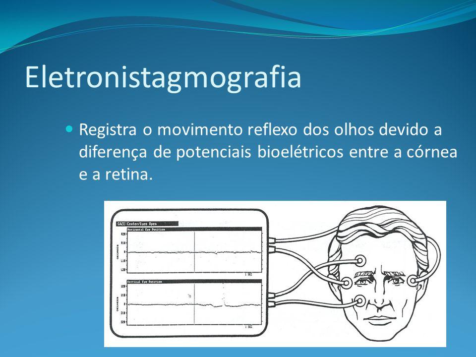 Eletronistagmografia