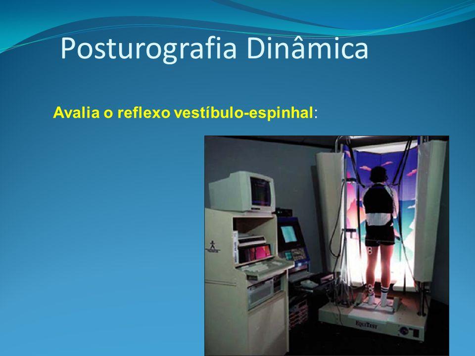 Posturografia Dinâmica