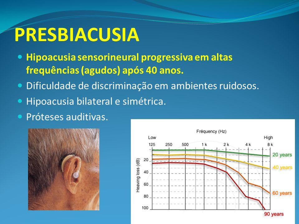 PRESBIACUSIA Hipoacusia sensorineural progressiva em altas frequências (agudos) após 40 anos. Dificuldade de discriminação em ambientes ruidosos.