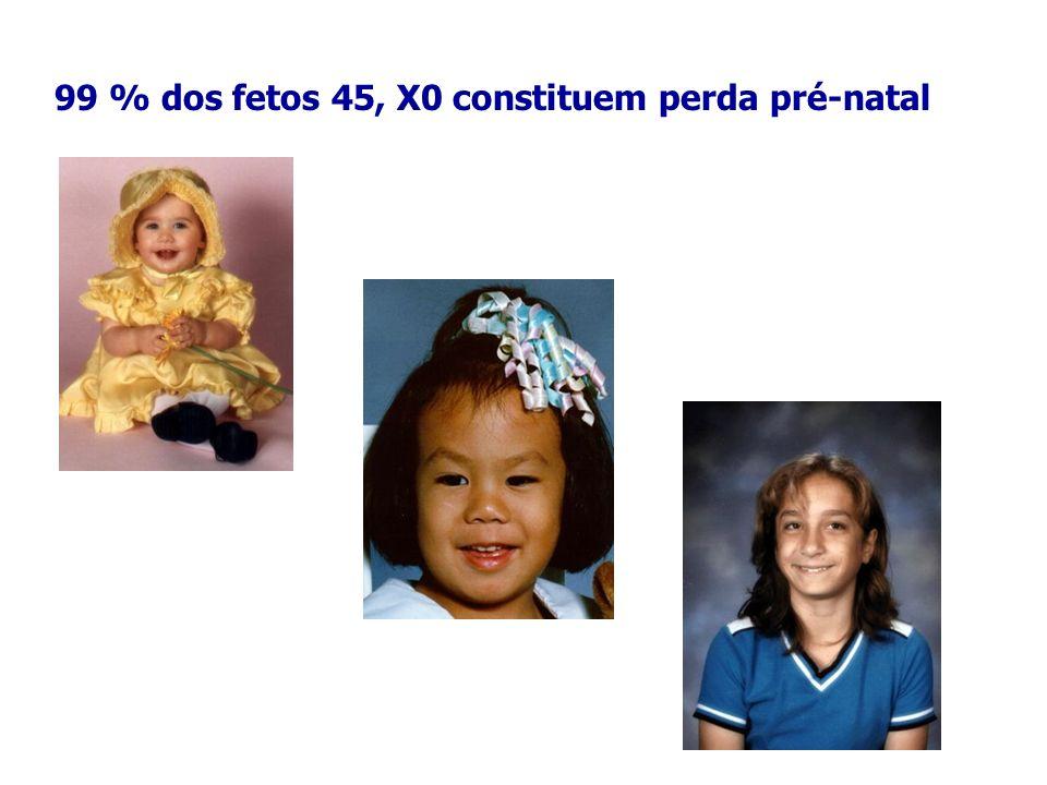 99 % dos fetos 45, X0 constituem perda pré-natal