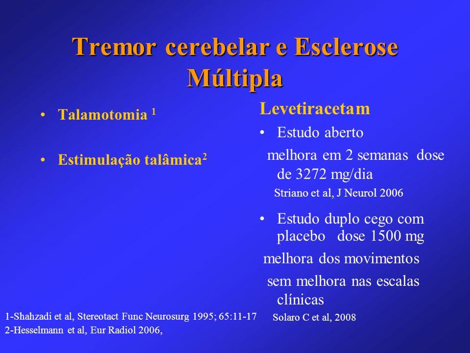 Tremor cerebelar e Esclerose Múltipla