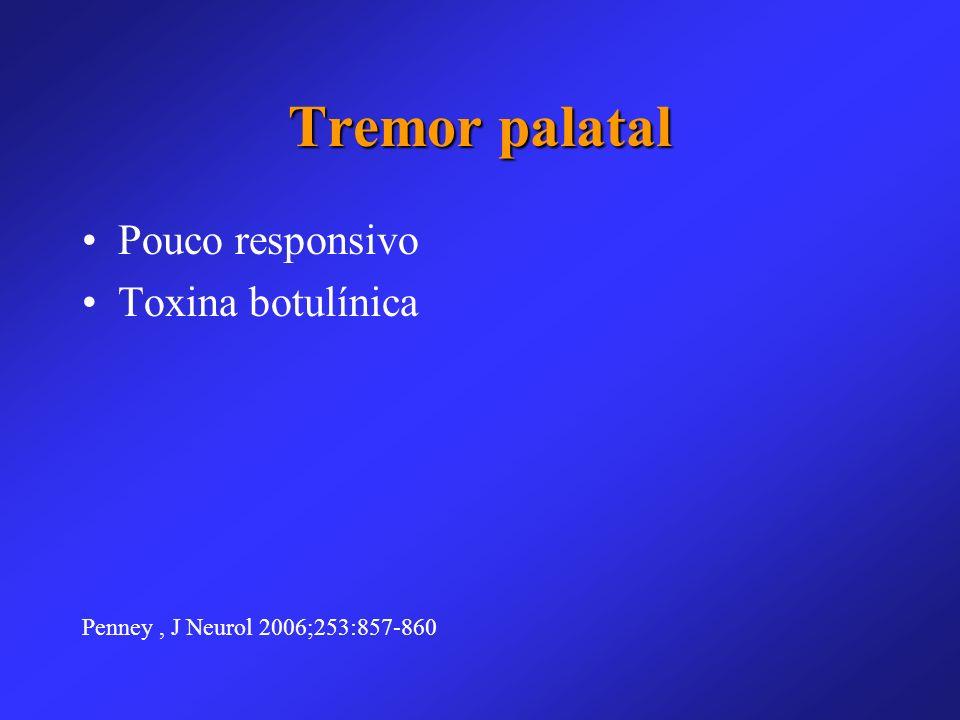 Tremor palatal Pouco responsivo Toxina botulínica