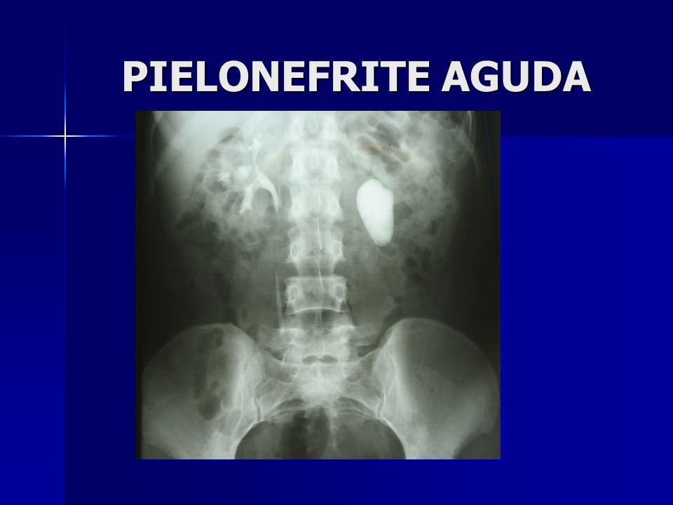 PIELONEFRITE AGUDA